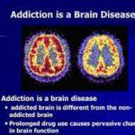 brain disease2
